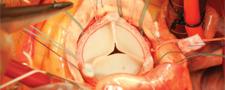 Aortic Valve Surgery
