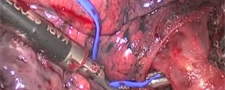 Video-Assisted Thoracoscopic Surgery (VATS)